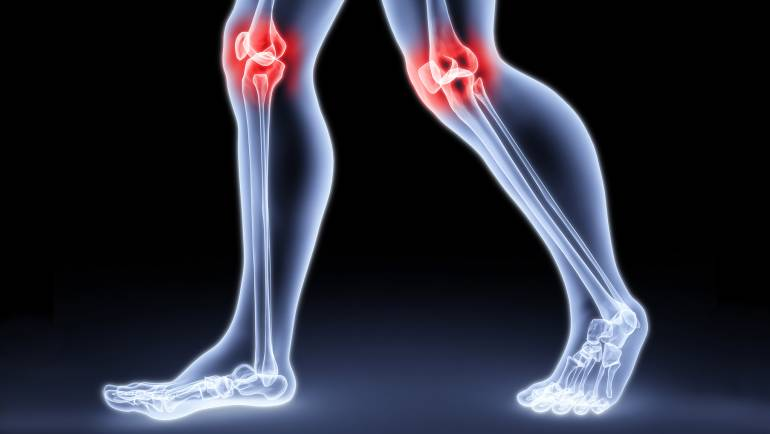 3 TIPS FOR HEALTHY LIVING WITH ARTHRITIS